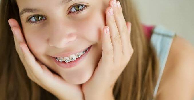 çocuk diş teli